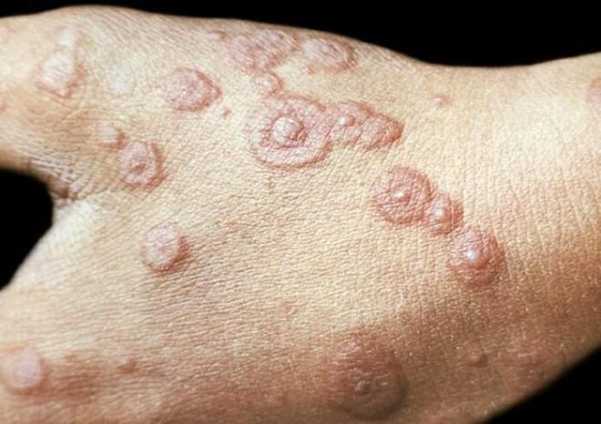 Інфекційну еритему викликає парвовірус В19, що передається повітряно-крапельним шляхом